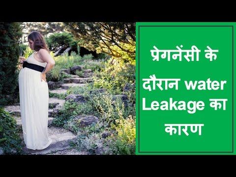 प्रेगनेंसी-के-दौरान-water-leakage-का-कारण/reasons-and-solutions-for-water-leakage-during-pregnancy