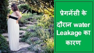 प्रेगनेंसी के दौरान water Leakage का कारण/reasons and solutions for water leakage during pregnancy thumbnail