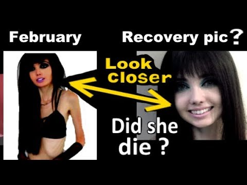 Recovery or hoax? Eugenia Cooney's New picture isn't proof she's even alive