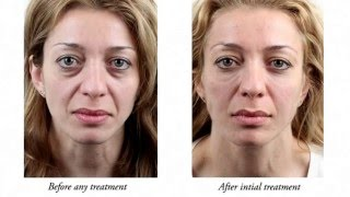 Tear trough dermal fillers dissolved and retreated