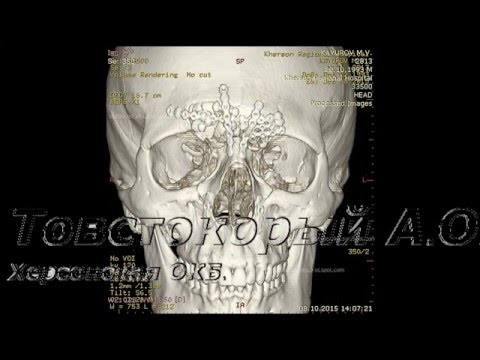 Перелом костей носа — Википедия