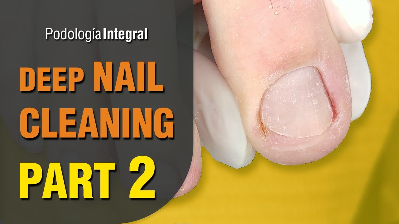 Deep nail cleaning [Part 2] Feet with hyperhidrosis