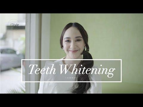 iStyle Indonesia #WeGuide - Teeth Whitening - Klinik Virtue Care Dental + Medical