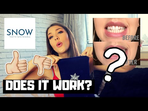 Snow Teeth Whitening Kit Does It Work Honest Review Youtube