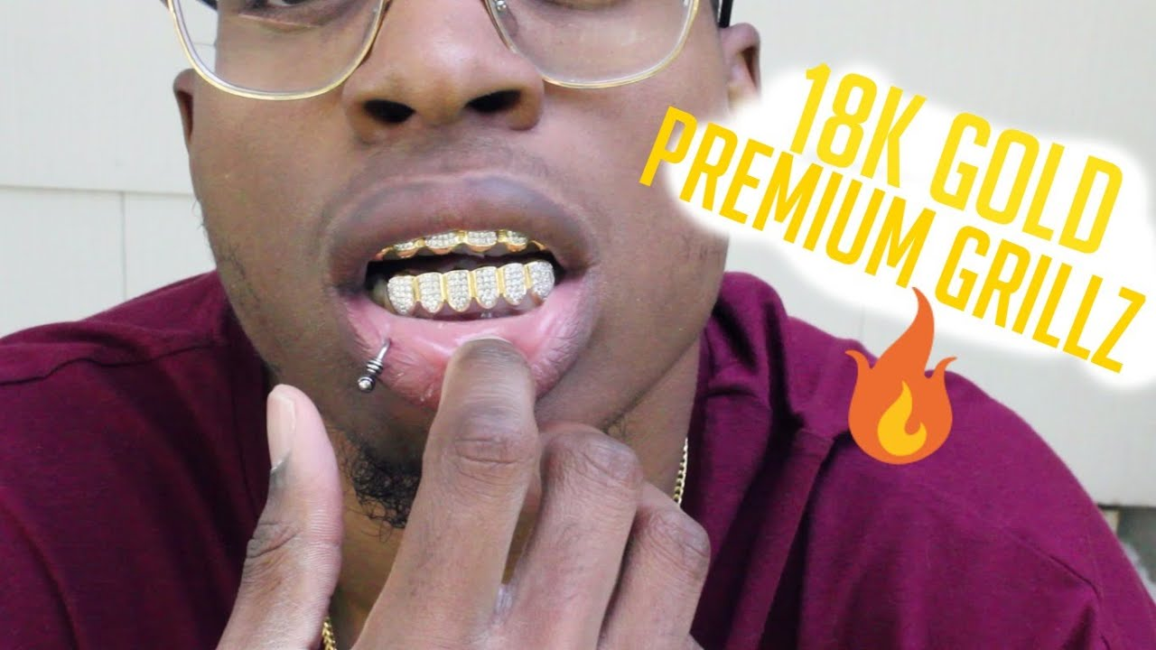 Gold Grillz. How It Works! (Dr. Kelly, Miami) - YouTube