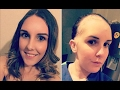 'I look like a Barbie doll that's been attacked by a kid': Woman, 28, who suffers from hair loss....