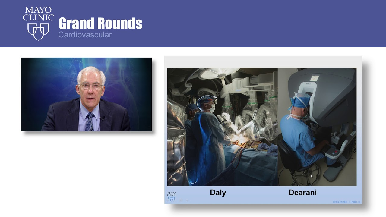 Mayo Clinic Grand Rounds – Robotic Approach to Mitral Valve Repair: Mayo  Clinic Experience