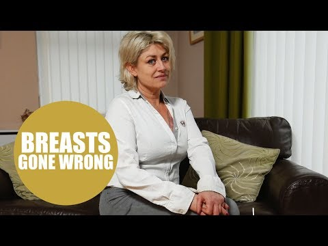 Former Athena poster girl wins £100k in compensation after botched boob surgery