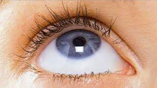 Упражнения для глаз при дальнозоркости, восстановление зрения, видео урок
