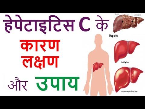 हेपेटाइटिस सी के कारण, लक्षण और उपाय   Hepatitis C : Cause, Symptoms & Treatment