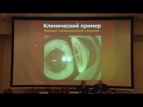 «Патогенетический способ лечения хронической закрытоугольной глаукомы»