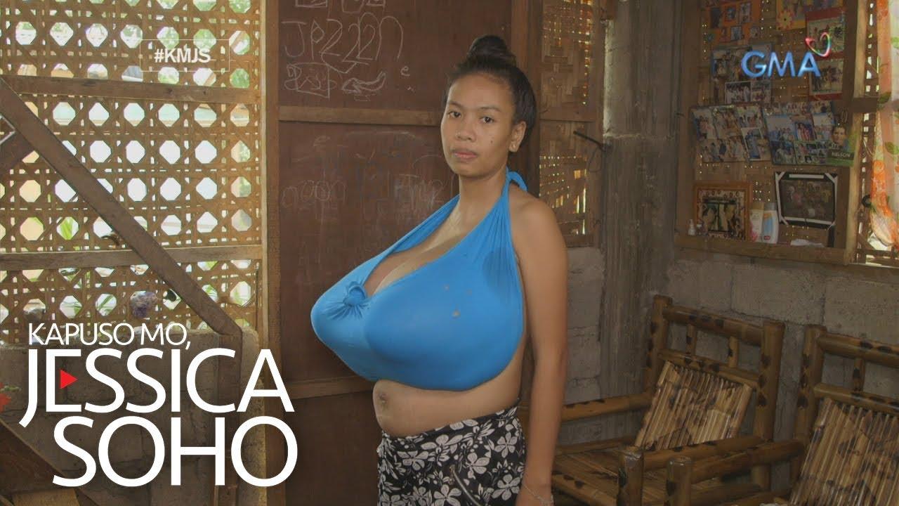 Kapuso Mo, Jessica Soho: Ang lumolobong problema ni Jonalyn