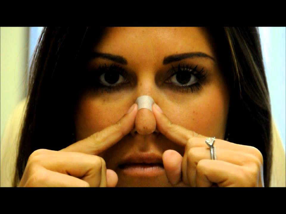 How To Tape Your Nose After Rhinoplasty San Diego La