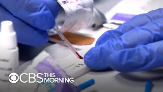 antibody-tests-provide-closure-people-previously-sick-answers