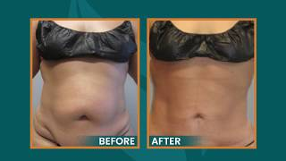 Will Liposuction Give Me Loose Skin?  Ask Dr Schulman.