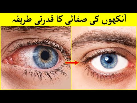 HOW TO GET WHITE EYES - EYES WHITENING AND BRIGHTEN TIPS