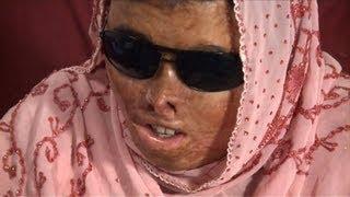 Les attaques à l'acide, crimes désormais mieux punis au Pakistan thumbnail