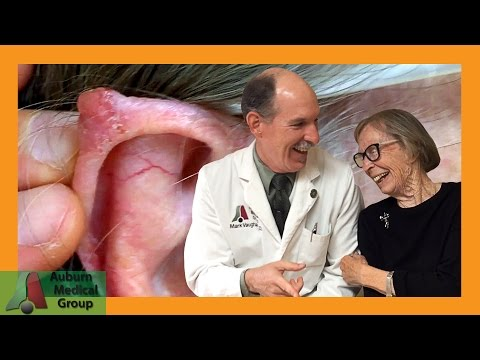 Elf Ear Removal AKA Pointed Ear Flattening Surgery | Auburn Medical Group