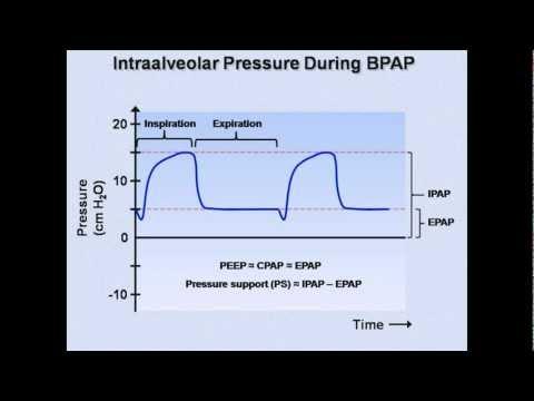 Non-Invasive Ventilation (NIV) SID \u2022 LITFL \u2022 CCC Respiratory