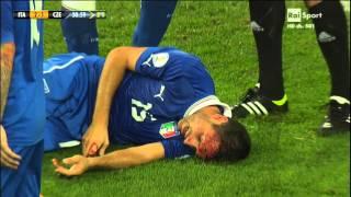 Infortunio Pasqual - Qualificazioni Campionati Mondiali 2014 Italia Repubblica Ceca