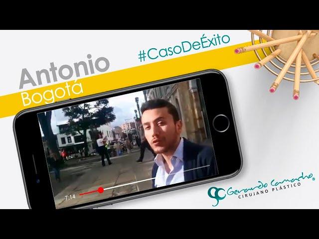 Testimonio Paciente Cirugía plástica BOGOTA COLOMBIA