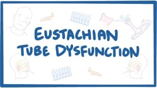 What is Eustachian tube dysfunction? Eustachian tube dysfunction is...