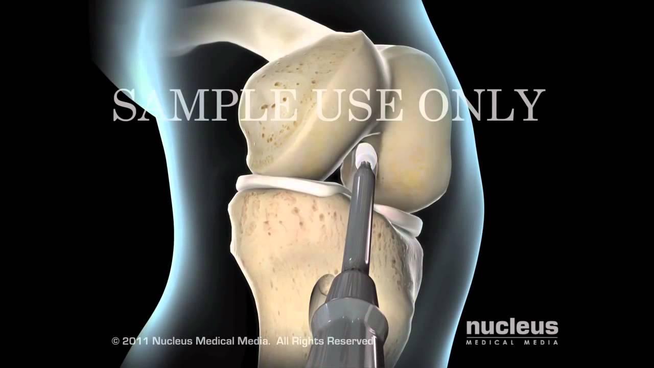 Артроскопия пкс коленного сустава видео ортезы коленного сустава цена саратов