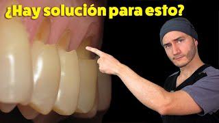 Desgastes en el cuello de los dientes   Causa y Solución   Abfracción Dental
