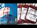 Nếu mang nhóm máu O, bạn nhất định phải biết điều này để giữ mạng sống