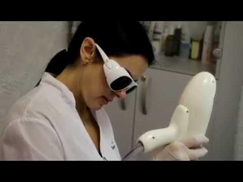 Лазерный карбоновый пилинг видео процедуры - Доктор Лилиана