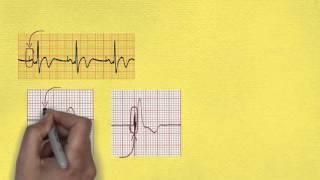 ЭКГ при искусственном водителе ритма  Ч 1(Как меняется ЭКГ при искусственном водителе ритма? Как оценить функцию и вид кардиостимулятора? Что такое..., 2015-11-26T19:17:57.000Z)