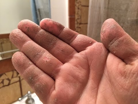 How to REALLY Remove Sticky Crazy Glue or Spray Foam Adhesive Chemicals from your hands