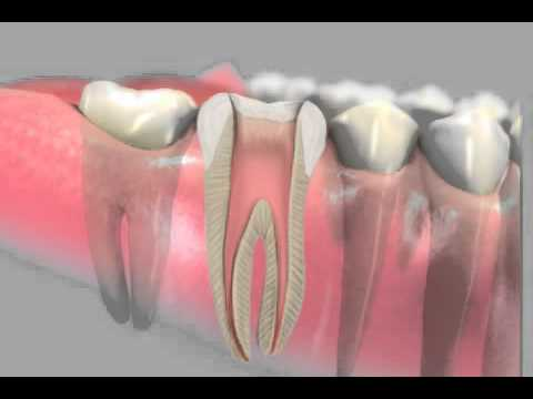 Tooth abscess: how to get rid of a gum abscess  Symptoms and