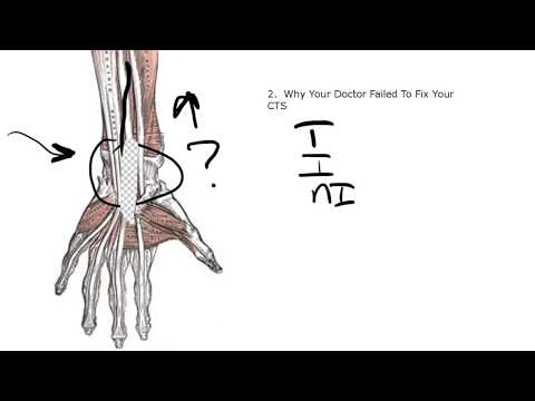 Dokterku - Carpal Tunnel Syndrome.