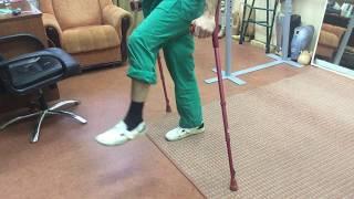 Учимся ходить на протезе. Первые шаги на протезе бедра.