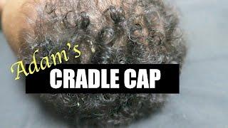 ADAM'S CRADLE CAP!(REMOVAL & WHAT I'M USING)