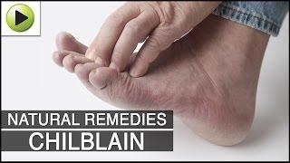 Skin Care - Chilblain - Natural Ayurvedic Home Remedies