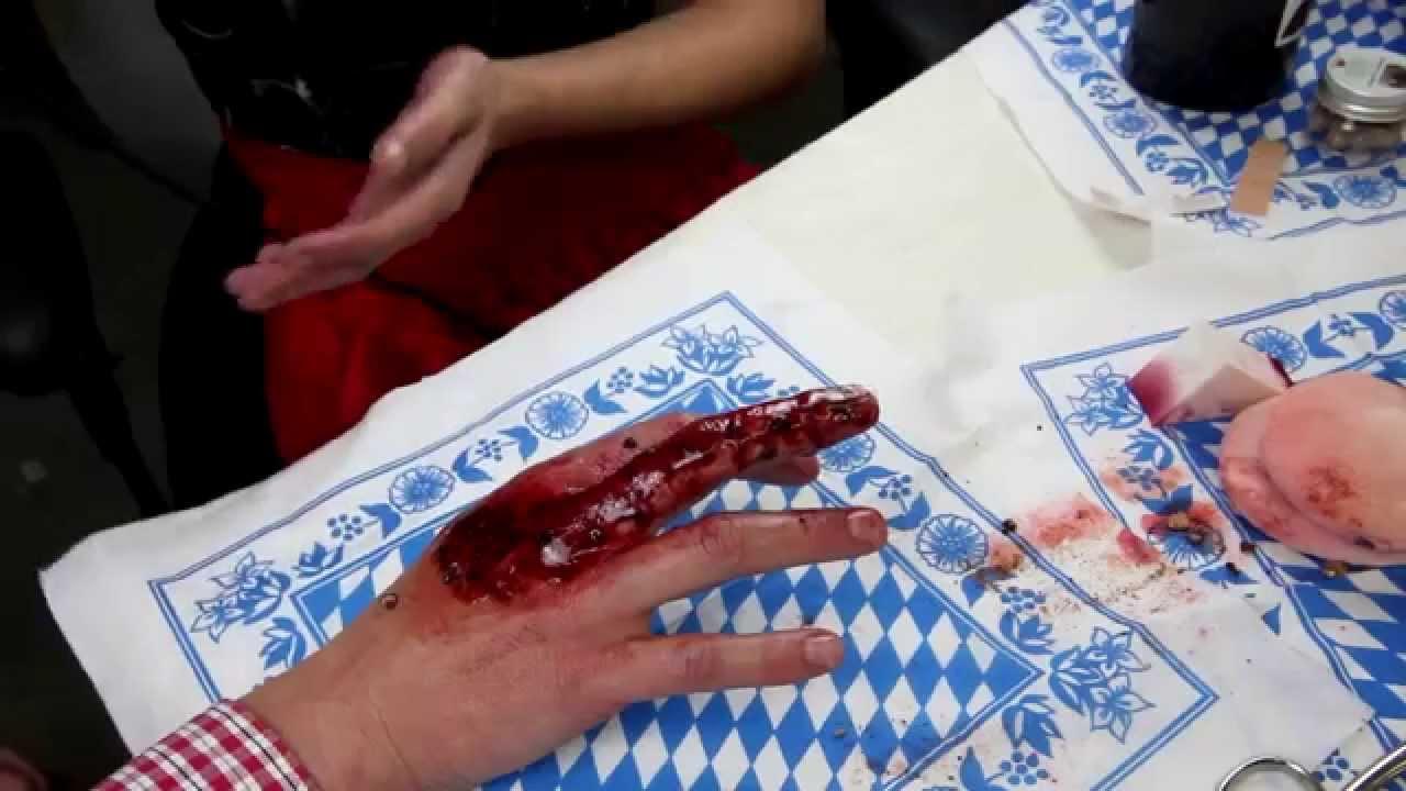 fingernagel komplett abgerissen