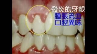 牙周病講解