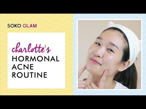 Charlotte's Hormonal Acne Routine