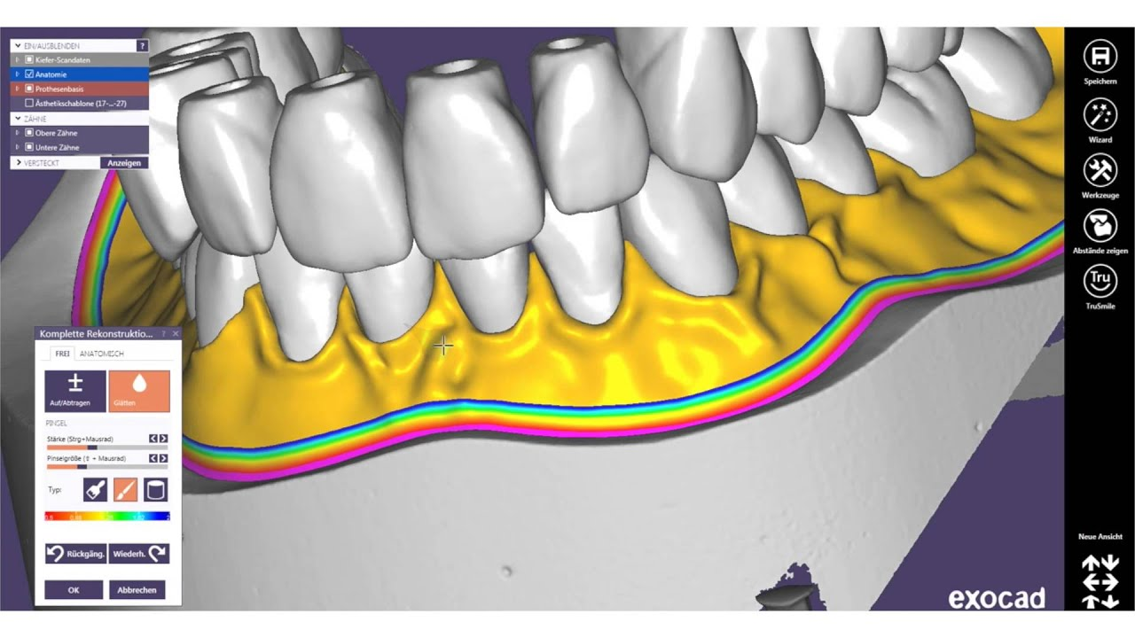 EXOCAD TUTORIAL 2016 - FREE - Gingiva Modellation by Michael Anger