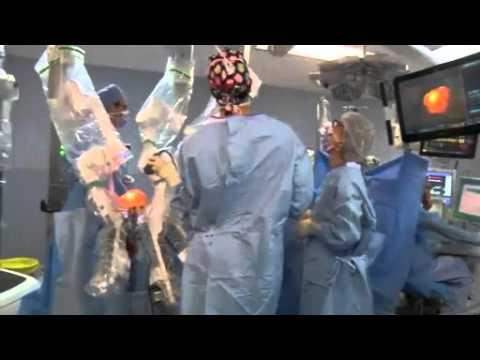 Reconstruction Mammaire Assistée D'un Robot, Chirurgie Mammaire
