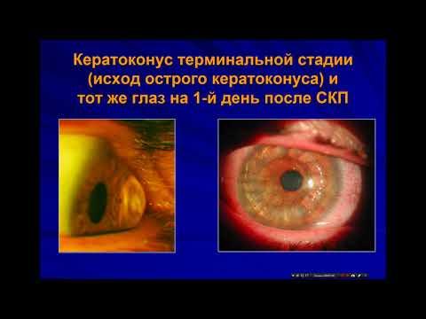 «Острый кератоконус  Актуальные вопросы ведения больных»