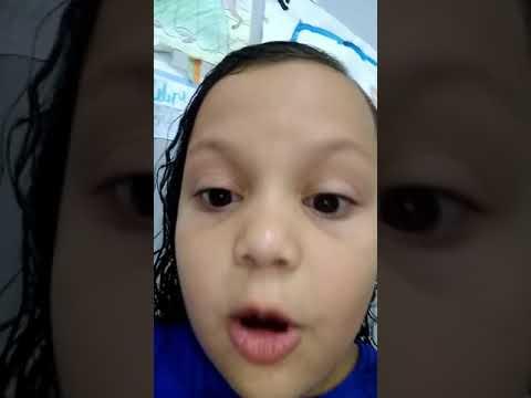 Yasmim Silva Mirandola E Seu Dente De Leite😜