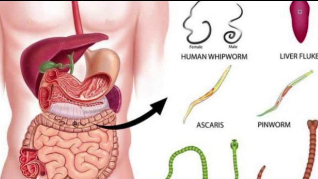 whipworm este un parazit