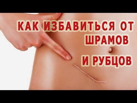 Препараты снижающие артериальное давление