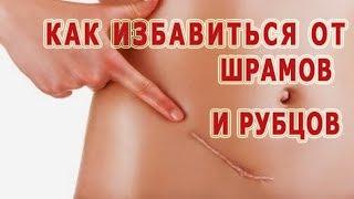 ★ Как избавиться от  РУБЦОВ на лице и теле. Удаление ШРАМОВ разными методами.