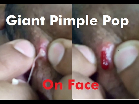 Giant Pimple popping On My Face - YouTube