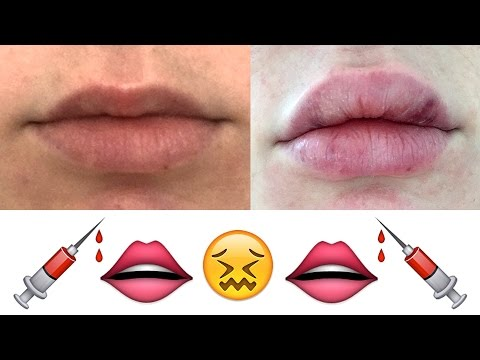 My Honest Experience With Lip Injections | Lauren Curtis