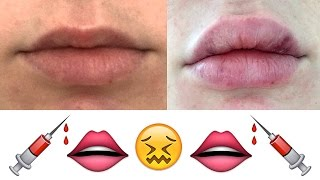 My Honest Experience With Lip Injections | Lauren Curtis thumbnail